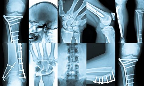 test radiologia radiologia toscano