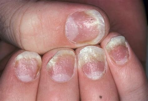 what causes psoriasis 2017 nail psoriasis medical treatment nail psoriasis pictures treatment symptoms causes