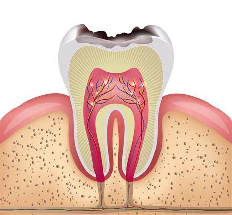 innere hitze ursachen zahnnerventz 252 ndung pulpitis ursachen symptome und