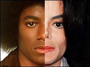 why did michael jackson change his skin color when why and how did michael jackson s skin 2017 quora