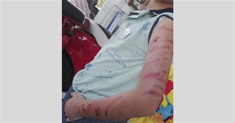 kanak kanak   dipukul teruk abang sendiri  alor