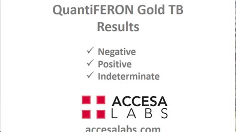 test quantiferon tb blood test quantiferon gold tb blood test results