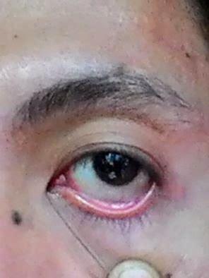 Obat Mata Kuning Dan Gatal cara mengobati sakit mata dengan cepat