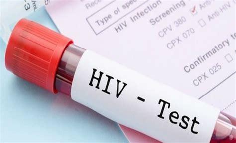 dove si fa il test hiv autodiagnosi aids hiv come funziona e dove trovare il test
