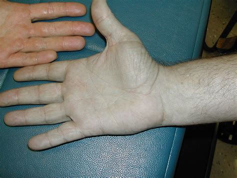 bluish coloration of the skin skin discoloration bluish causes symptoms treatment