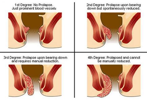 what causes piles how long should you bleed after giving how to get rid of hemorrhoids causes and treatments