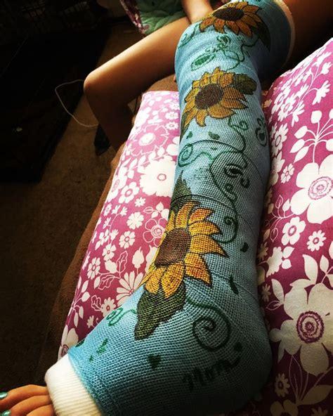 Leg Cast Drawings