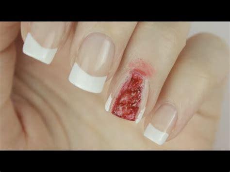 nail ripped i ripped my nail