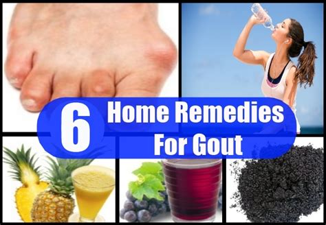 gout home remedies treatments and cures usa uk herbal