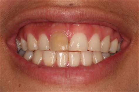 bowie teeth whitening rct endodontics internal