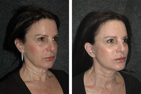 mini face lift new york facial plastic surgery mini face lift photos mini facelift pictures