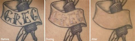 patient guide to laser tattoo removal learn about tattoo
