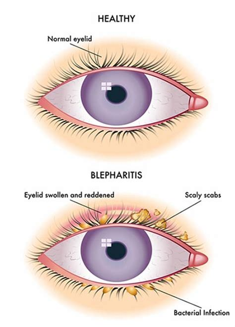 itchy eyelids causes related keywords suggestions