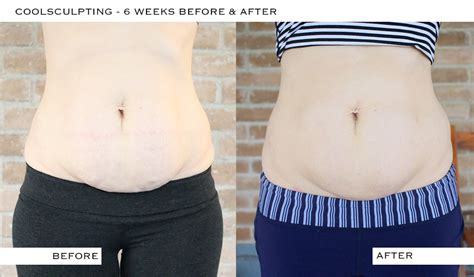 c section shelf coolsculpting before after pictures 6 weeks it s pam del