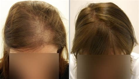 women haircuts for thinning crown hairstyles for thinning crown women short hairstyle 2013