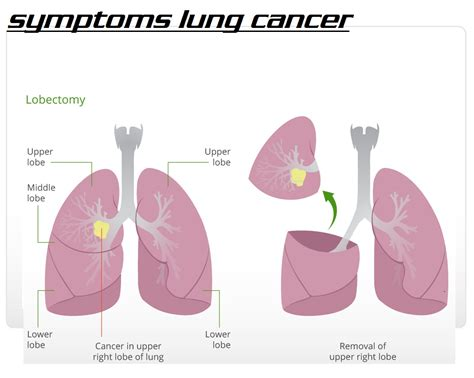 cancer symptoms about lung cancer 3000