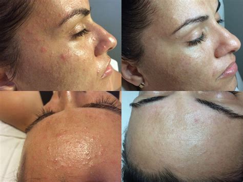 laser tattoo removal puerto rico dermalosophy 88 photos laser hair removal av jose