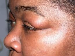 ayurvedic facial diagnosis    lines