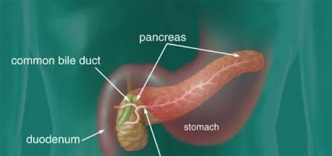 what are the symptoms of pancreatic cancer as unhealthy