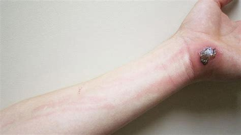 tattoo infection red lines cellulitis causes symptoms treatments and pictures