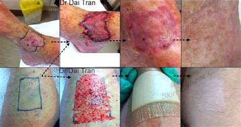 tattoo skin graft cost split thickness skin graft to ankle crown skin cancer