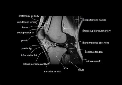 cross sectional anatomy pdf astonishing knee anatomy mri sagittal cross sectional