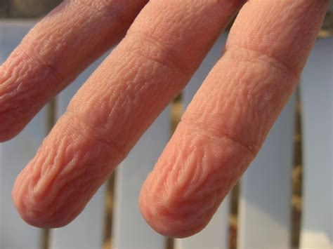 why does skin wrinkle in the bathtub prune fingers give us better grip in slippery situations
