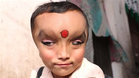 Whats Mysterious Condition by Boy With Mystery Condition Is Worshipped As A God