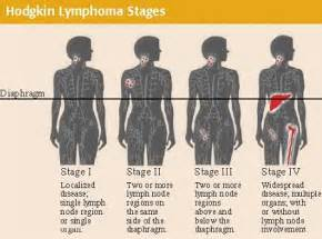 Stages of non hodgkin s lymphoma dr david samadi s official blog