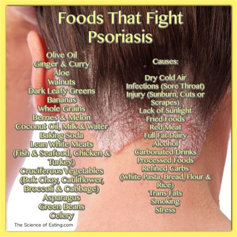 Psoriasis Detox Diet by Foods To Help Health Issues