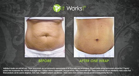 This Cellulite Works by It Works Wraps Before And After Pictures