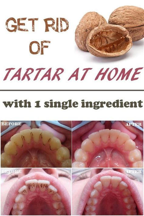 get rid of the tartar with a single ingredient at home