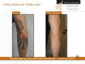 tattoo removal sydney cbd best laser removal clinic sydney cbd think again