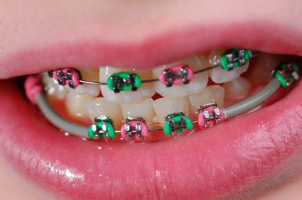 Bracket Behel Metal Sky Ortho braces colors which ones right for you hubpages