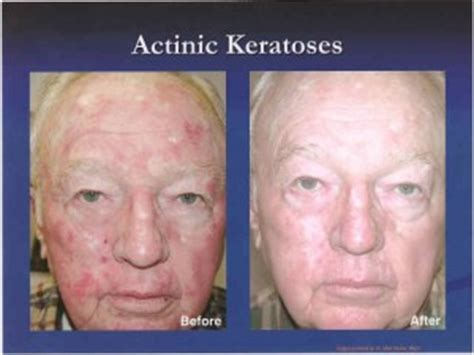 blu u light treatment for actinic keratosis photodynamic therapy pdt the skin center board