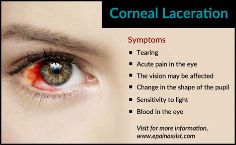 is corneal laceration more serious than corneal abrasion