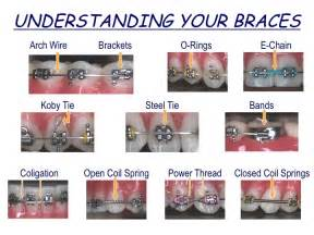 braces band colors braces rubber band colors newhairstylesformen2014