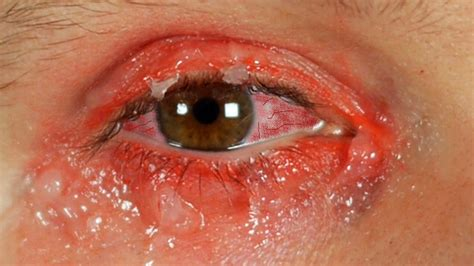 pink eye images you are contagious