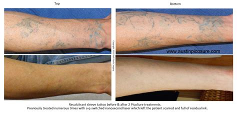 how effective is the picosure laser on recalcitrant tattoo