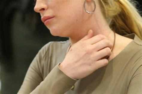 nichel alimenti sintomi allergia al nichel i sintomi le cause e la dieta da seguire