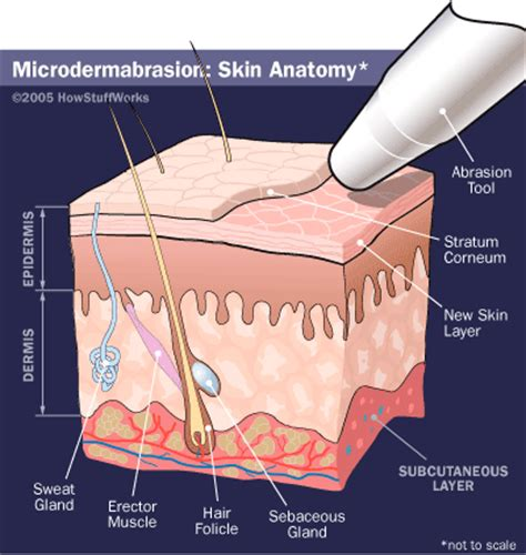 how microdermabrasion works howstuffworks