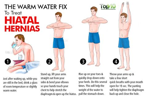 home remedies for hiatal hernias top 10 home remedies
