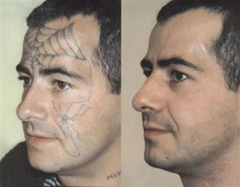 tattoo removal with salt before and after a is forever unless it is not whether its