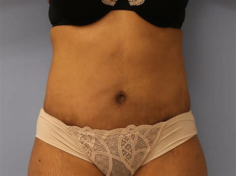 excess pubic hair revision tummy tuck archives cosmetic surgery chicago