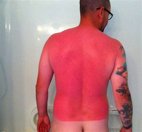 Why Do Itch So Bad After A Shower by Here S A Pretty Solid Reminder To Wear Sunscreen This