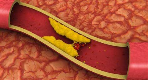 alimentos para evitar el colesterol alto alimentos que se deben evitar con el colesterol alto