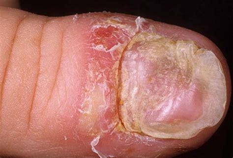 Toenail Psoriasis Pictures