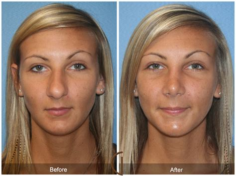 photo gallery before and after cosmetic surgeon in the before after rhinoplasty 35 california nose job expert