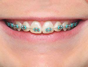colored braces colored braces koch orthodontics livingston county