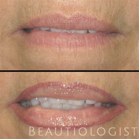 lip liner tattoo aberdeen permanent lips beautiologist expert permanent makeup
